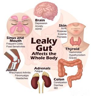 Leaky-Gut-2.jpg